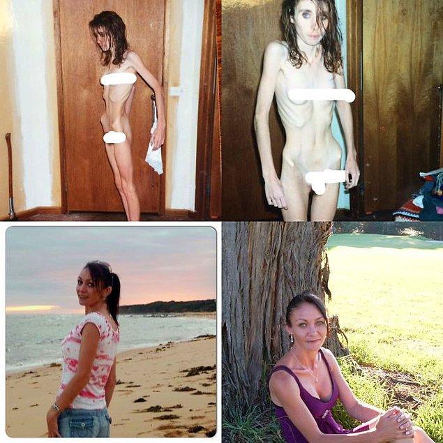 """12. """"23 kiloya düşmüştüm. 14 yılımı bedenimi aç bırakarak geçirdim. Bugün 2 tane harika kızım var ve hastalıktan eser yok."""""""