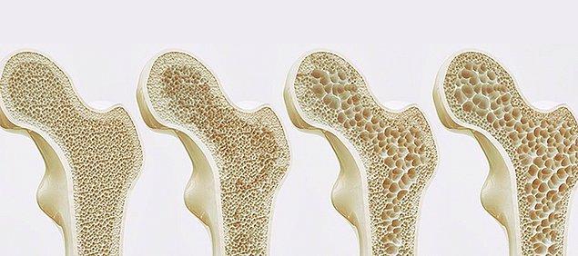 65 yaşın altındaki kadınların özellikle risk faktörleri varsa (sigara içmek, yeterince kalsiyum tüketmemek, ailede osteoporoz öyküsü olması veya düşük kiloda olmak) kemik yoğunluğu testi (dansitesi) tavsiye ediliyor.
