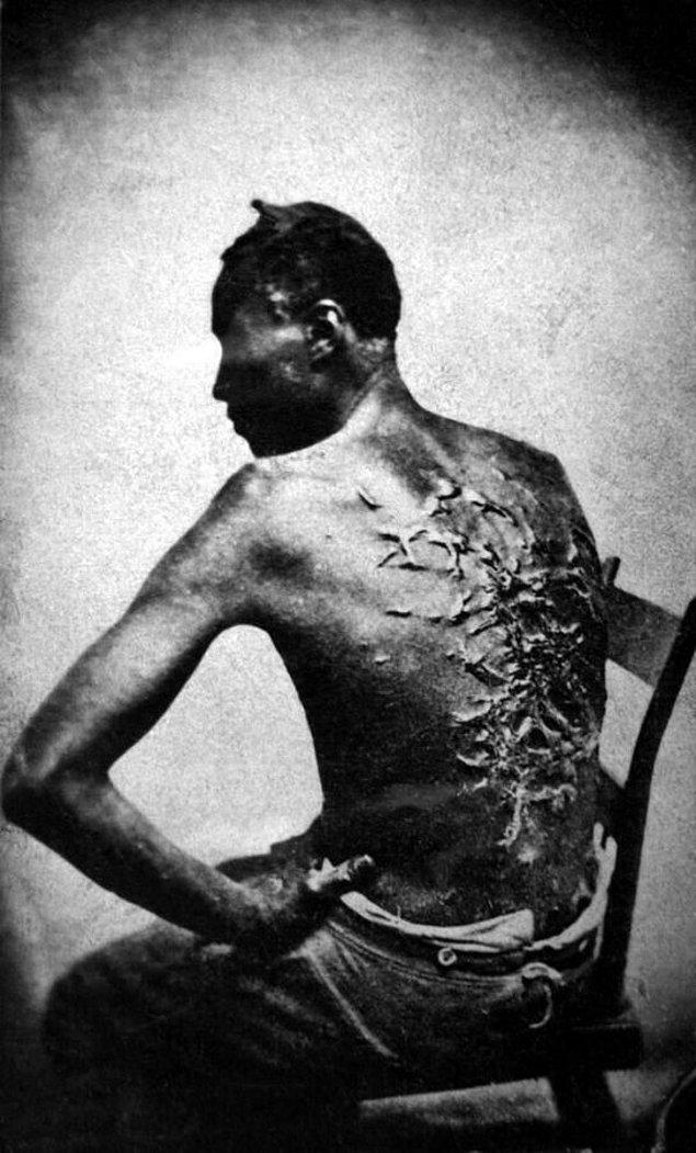 7. Eski bir kölenin yaraları, 1863.