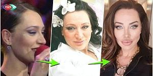 Yaptırdığı Estetiklerle Angelina Jolie'nin İkizi Haline Gelen Şarkıcı Umut Akyürek'in Geçmişten Günümüze İnanılmaz Evrimi