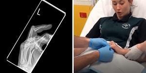 Serçe Parmağı Çıkan Kadının Doktordayken Ölüp Ölüp Dirildiği Anlar