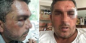 İstanbul'da Kurye Dehşeti! Tartıştıkları Adamın Motosikletle Başını Ezmeye Çalıştılar