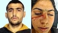 Kahvaltı Hazırlamadığını İddia Ettiği Eşini Darbedip, Bıçaklayan Koca Tutuklandı