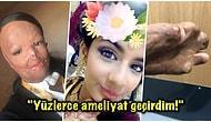 Kullandığı Bit Şampuanı Alev Alınca Yüzü ve Vücudunun Yarısından Fazlası Yanan 16 Yaşındaki Talihsiz Kız