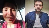 Boşandığı Eşinden Şiddet Gören Sibel'den Sosyal Medyada Yardım Çığlığı: 'Ben Ölmeden Sesim Olun'