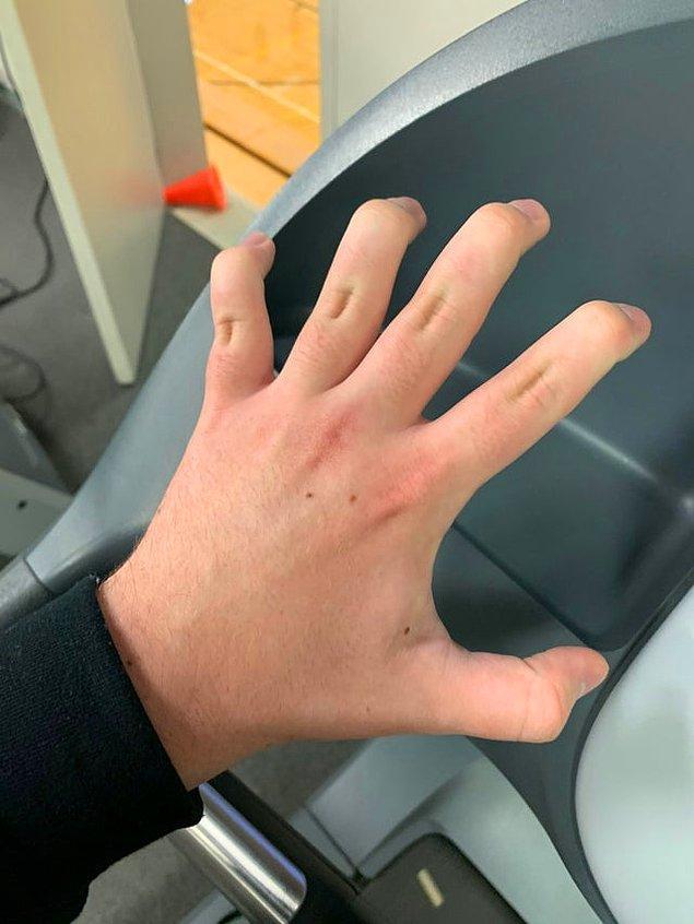 """7. """"Diğer eklemleri bükmeden sadece parmak uçlarımı bükebiliyorum."""""""