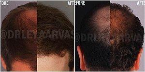 Hayalinizdeki Doğal Saçlara Kavuşmak Artık Hayal Değil! Çözümü: Saç Ekimi