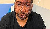 Fransa'da Siyahi Müzik Yapımcısını Acımasızca Döven Polisler Açığa Alındı