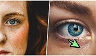 Gözlerinizin Çevresinde Oluşan Beyaz Noktaların Neden Oluştuğunu ve Tedavisini Açıklıyoruz!