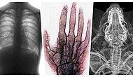 İlk Bakışta Ne Olduğuna Anlam Veremeyip Derin Düşüncelere Dalacağınız Birbirinden Enteresan X-Ray Görüntüleri
