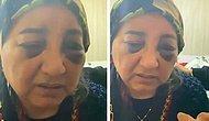 Eşini Gözleri Morarıncaya Kadar Dövüp Aç Bırakan Koca Tutuklandı
