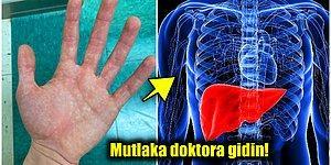 Aman Dikkat! Eğer Ellerinizde Bu Kızarıklıklar Varsa Karaciğerinizi Kontrol Ettirmeniz Gerekiyor Olabilir