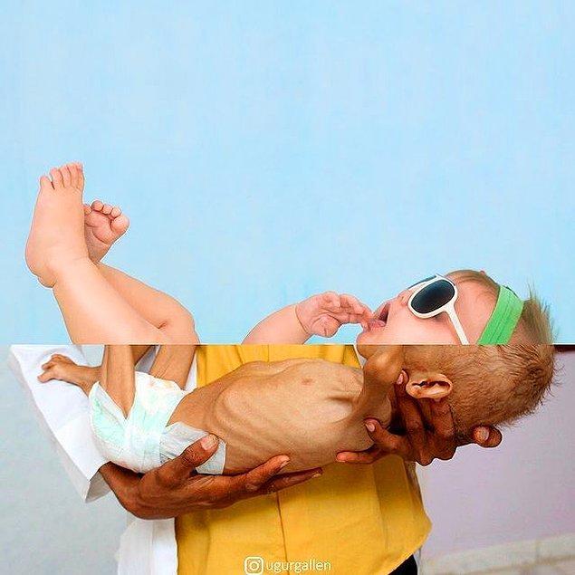 15. Hasta Yemenli bir çocuk!