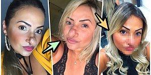 Burnundaki Tümörden Dolayı Hayatı Boyunca Kötü Yorumlara Maruz Kalan Kadının Bi' Garip Hikayesi