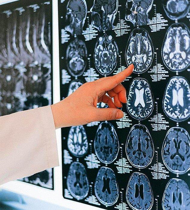 8. Beynimiz ortalama olarak vücut ağırlığımızın yaklaşık %2'sini oluşturur ancak kalori alımımızın %20'sini tüketir.