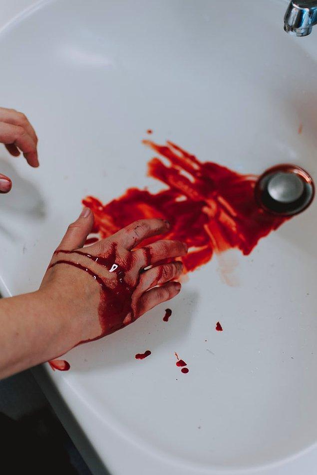 """10. """"Bir adam kendisini bacağından vurmuştu ve odası dahil bütün koridor kan içinde kalmıştı. Daha sonra polisler odasında uyuşturucu ve 5 farklı silah daha bulmuştu."""""""