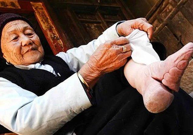 8. Akıllara durgunluk veren bir güzellik akımı da Çin'deki ultra küçük ayaklara duyulan ilgiydi.