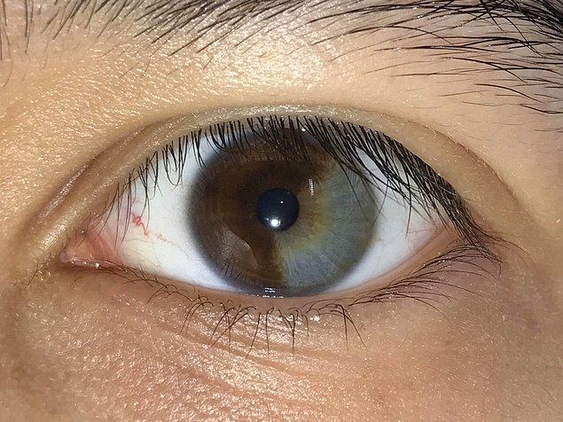 """2. """"Sol gözümün yaklaşık 1/3'ü gri."""""""