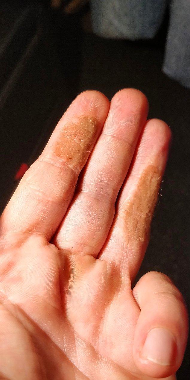 """12. """"16 yıl önce olduğum deri naklinden sonra parmaklarımda saç çıkmaya başladı."""""""