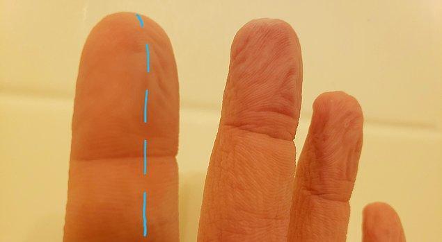"""14. """"İşaret parmağımda bir sinir koptu ve artık o parmağım buruşmuyor bile."""""""