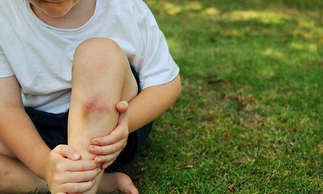11. Tatil dediğin çocuklar için oyun oynamak. Bu da eşittir, çarpmak, düşmek, diz yaraları, minik kanamalar ve morluklar.
