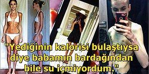 Anoreksiya Hastası Genç Kızın 28 Kiloya Düştükten Sonra Ölümden Dönüş Hikayesi Tüylerinizi Diken Diken Edecek!