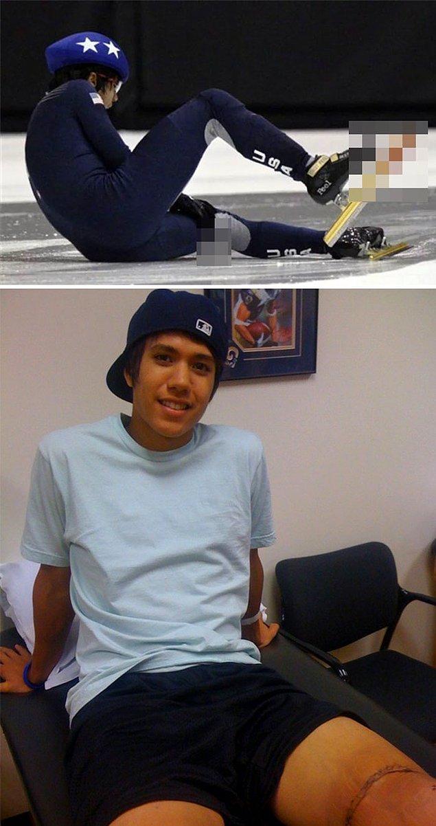 14. 2010 Kısa Kulvar Hız Pateni Olimpiyat Elemeleri sırasında yaptığı bir hatayla sol bacağının kaslarını kesen Amerikalı patenci J.R. Celski: