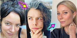 Saçlarınızın Beyazlamasının Nedenlerini ve Bulabileceğiniz Çözümleri Açıklıyoruz