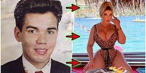 Geçirdiği Operasyonlardan Sonra Yaşayan Barbie Olarak Adlandırılan Kadın!