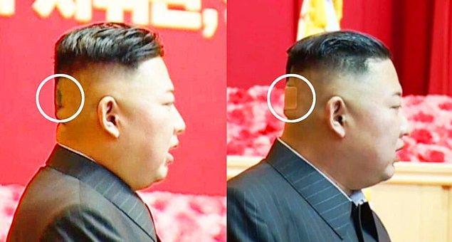 Kuzey Kore'nin lideri Kim Jong Un, geçtiğimiz hafta halka açık etkinlikler sırasında başının arkasında koyu bir nokta ile halkının karşısına çıktı.