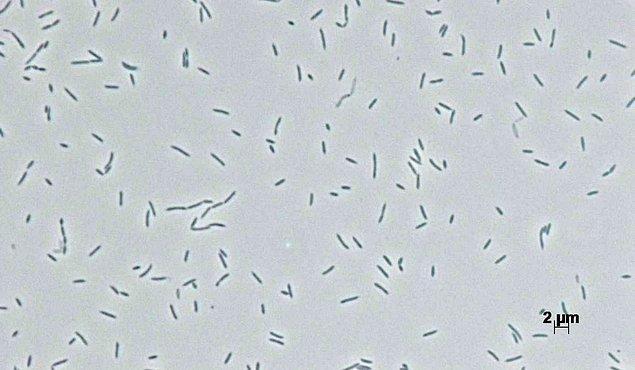 Bundan yola çıkarak, bakterilerin rafine edilmemiş ham petrolün toksisitesinden etkilendiği düşünülüyor.