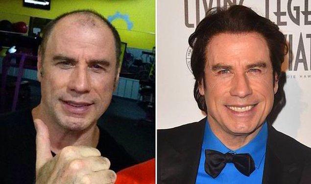 15. Müzikal filmlerin vazgeçilmez İtalyan kökenli oyuncu John Travolta'nın saç ektirme işlemi oldukça başarılı olmuş.