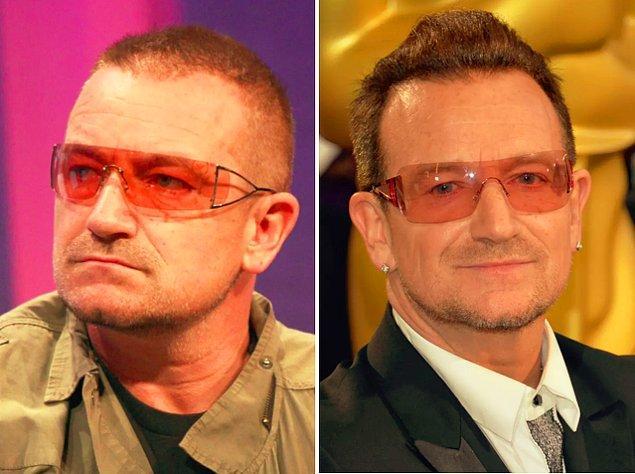 7. Müzikseverlerin favorilerinden rock grubu U2'nun solisti Bono da seyrelmeye başlayan saç problemini çözmüş.