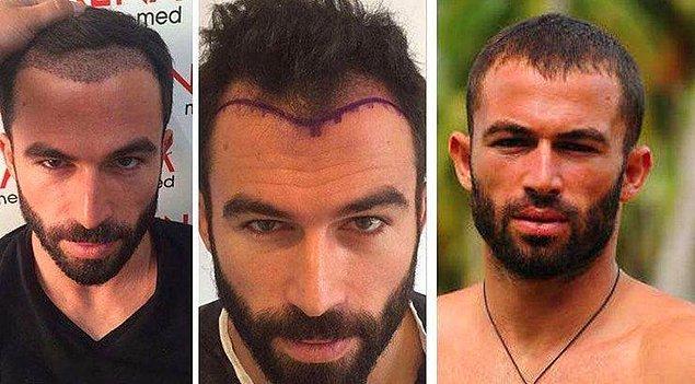 11. Mersin doğumlu 'Survivor' yıldızı Turabi protez saç yaptıran isimlerden.
