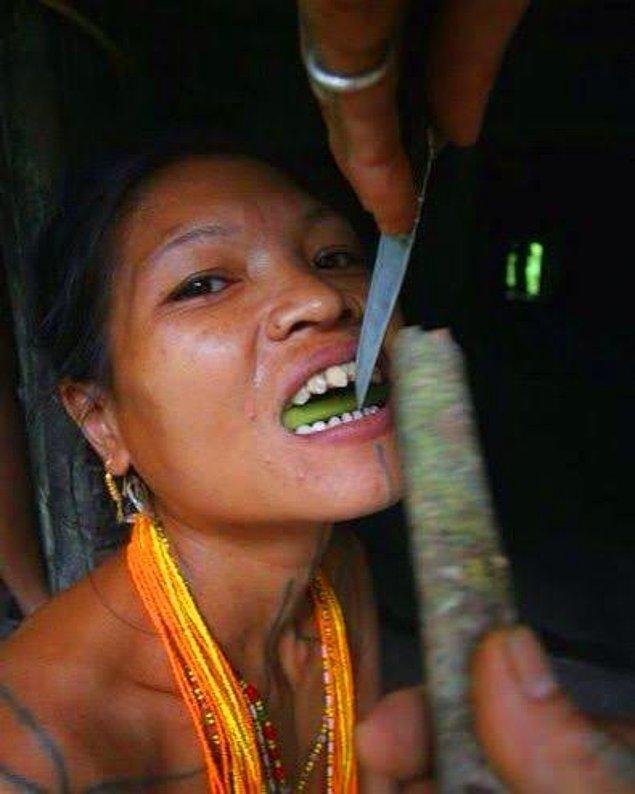 3. Diş törpüleme - Endonezya