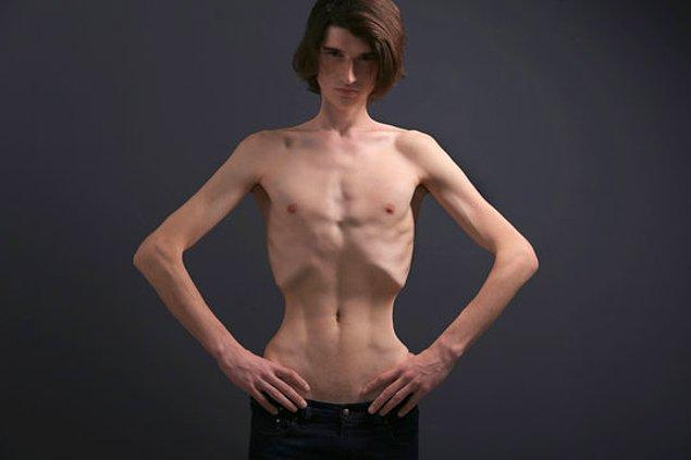 Anoreksiyanız olabilir!