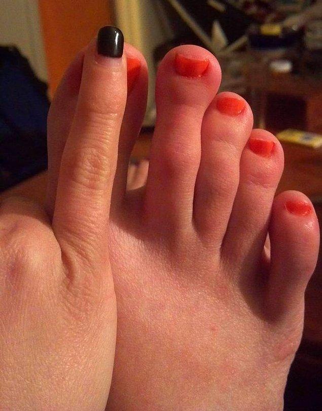 15. Ayak parmağı arkadaşının serçe parmağı ile aynı boyda olan bir kadın.