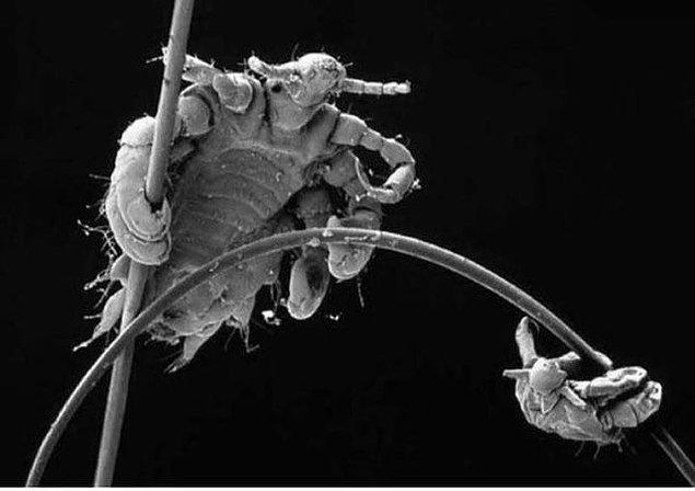 5. İnsan saçındaki bir bitin mikroskop altındaki görüntüsü: